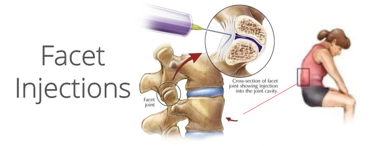 Facet Injections For Back Pain | PainDoctor.com