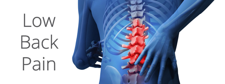 Lower Back Pain Diagram | PainDoctor.com