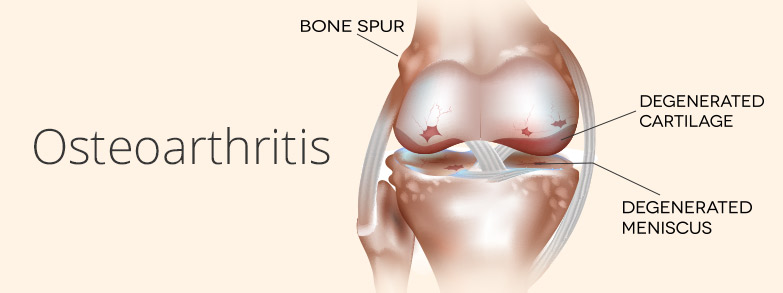 Osteoarthritis Symptoms | PainDoctor.com