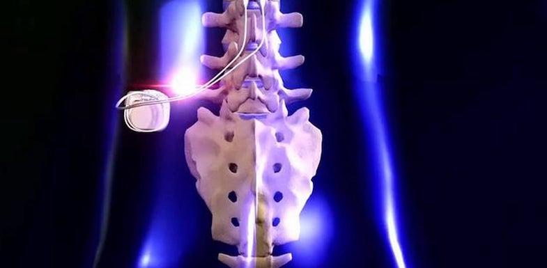 Spinal Cord Stimulator | PainDoctor.com