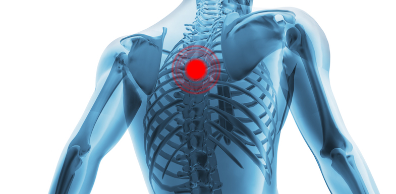 Thoracic Pain | PainDoctor.com