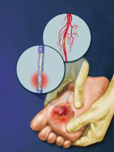 Diabetic-Peripheral-Neuropathy2