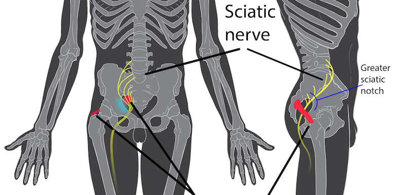What Is A Sciatic Nerve Block? Pain Doctor