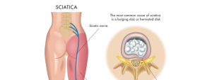 sciatica diagram