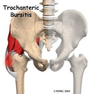 Trochanteral-Bursal-4