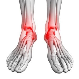Foot pain artwork
