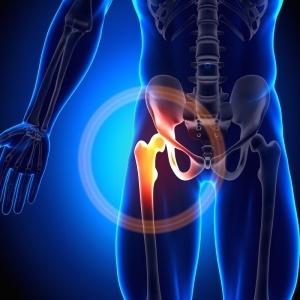 Hip Joint - Anatomy Bones