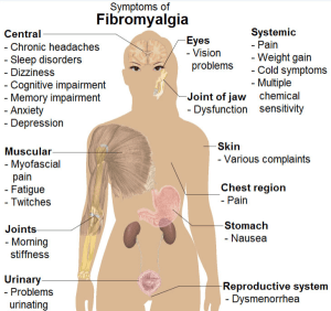 Fibromyalgia Symptoms   PainDoctor.com