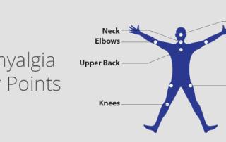 fibromyalgia tender points