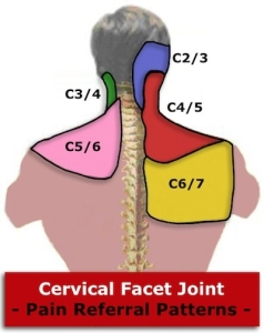 Cervical Facet Radiofrequency Neurotomy - Pain Doctor