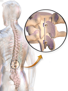 Spinal-Fusion-Diagram