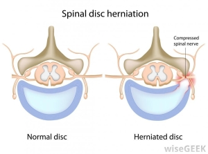 spinal-disk-herniated