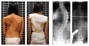 Scoliosis-patient-Brace