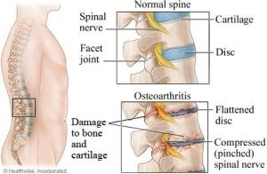 Osteoarthritis-Information