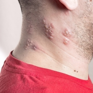 Shingles Conditions Pain Doctor