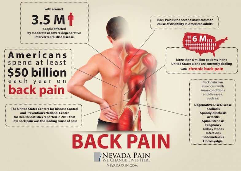 Back Pain Statistics | PainDoctor.com