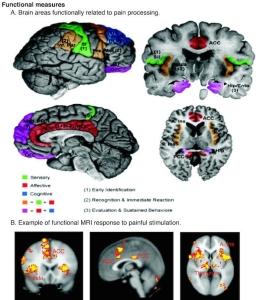 Neuropathic Pain   PainDoctor.com