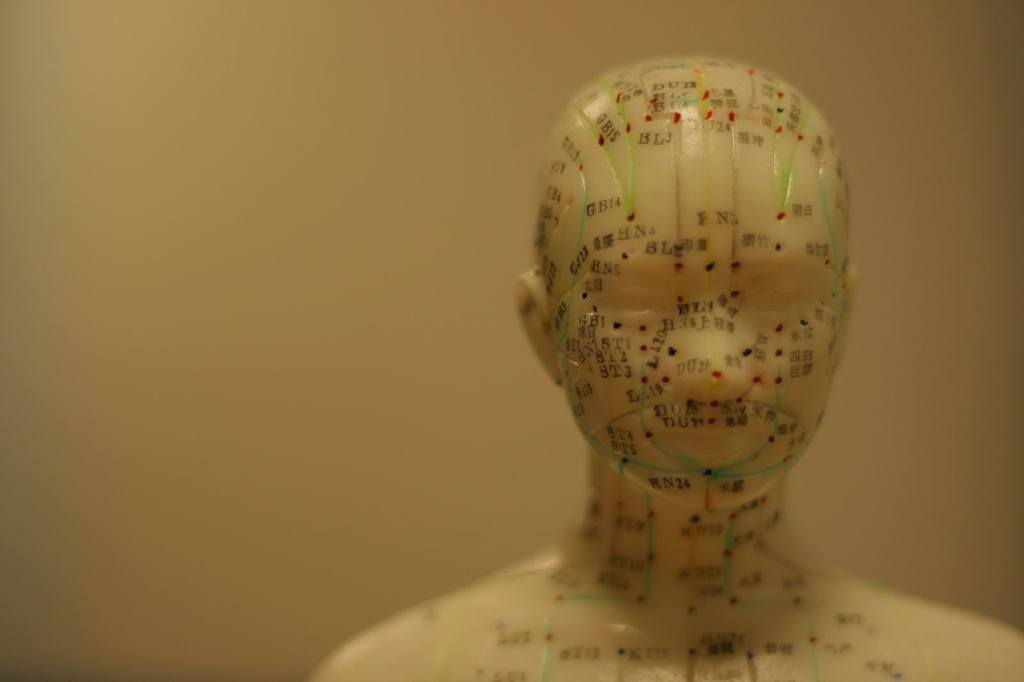 acupuncture for headache