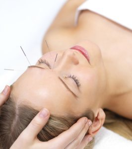 Chronic Pain - Acupuncture therapy