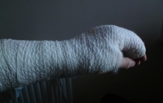 osteoporosis fracture