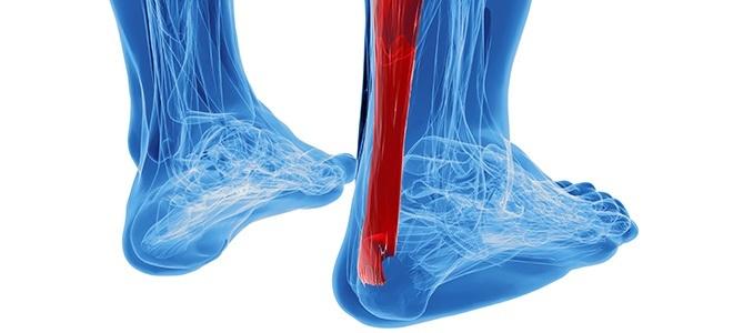 Achilles Tendonitis | PainDoctor.com