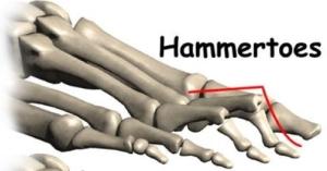 Hammer-Toe2