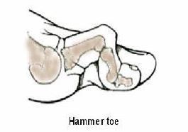 Hammer-Toe3