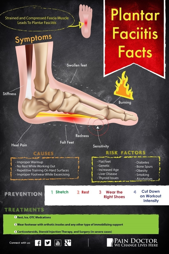 plantar faciitis facts