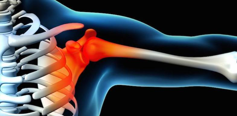 Shoulder Pain | PainDoctor.com