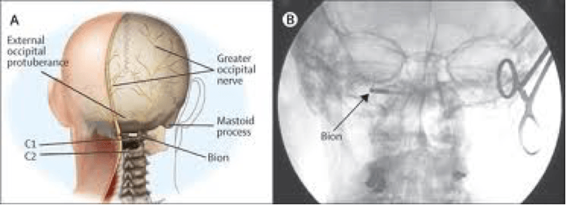 location of the Bion in the occipital region