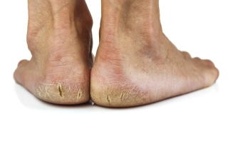 Treating Foot Pain Associated With Diabetes | PainDoctor.com