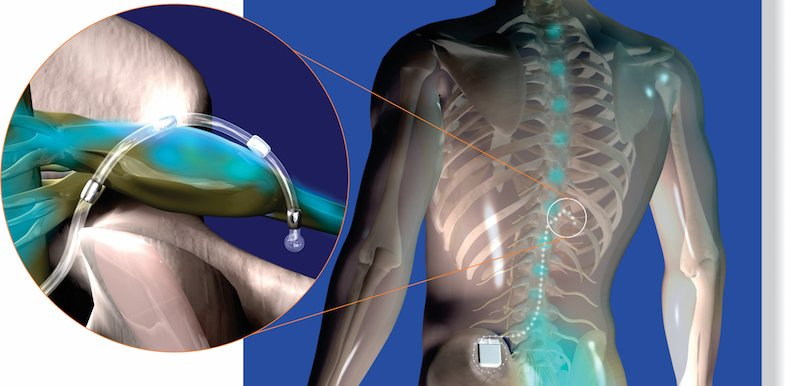 DRG Stimulation | PainDoctor.com