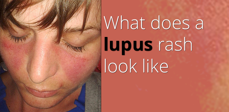 What Does A Lupus Rash Look Like?
