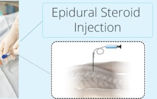 Sciatic Nerve Pain And Epidural Steroid Injections | PainDoctor.com