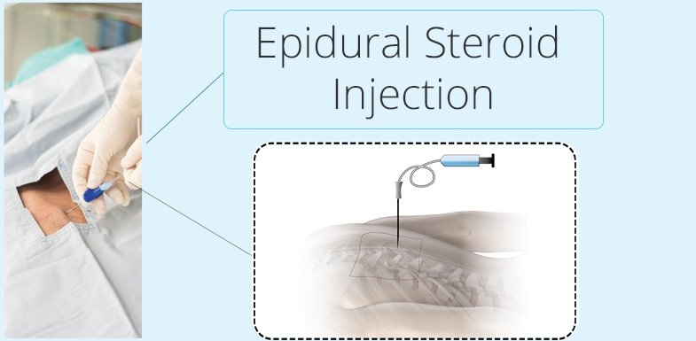 Sciatic Nerve Pain And Epidural Steroid Injections