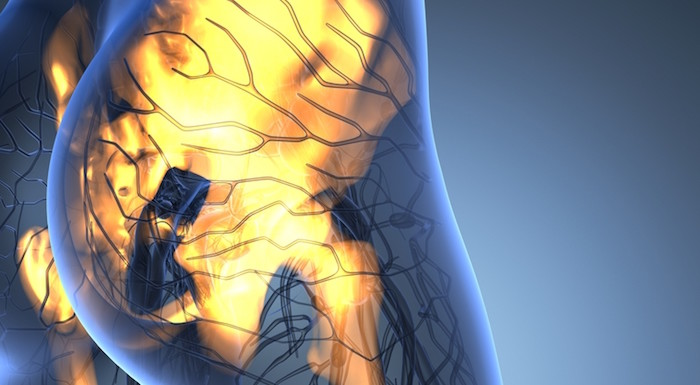 7 New Hip Pain Devices and Technology   PainDoctor.com