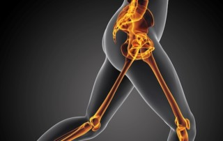 10 Common Causes Of Hip Pain From Running (And How To Treat Them) | PainDoctor.com