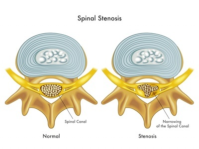 What Is Spinal Stenosis? | PainDoctor.com