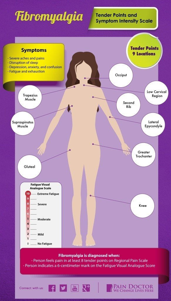 fibromyalgia symptoms 27 of the most common signs. Black Bedroom Furniture Sets. Home Design Ideas