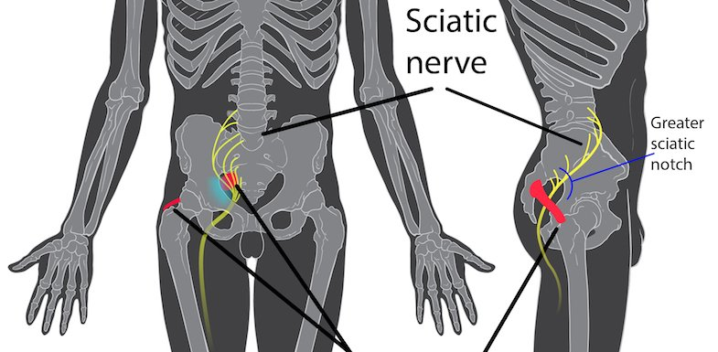 Would A Sciatica Massage Help Relieve My Pain?   PainDoctor.com
