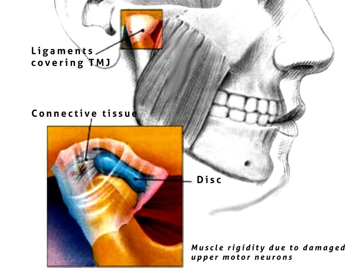 10 Of The Best Approaches To Tmj Pain Treatment Get Relief