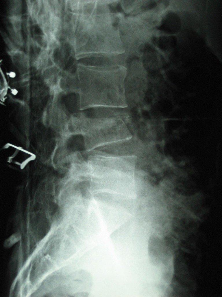 Vertebral Compression Fracture | PainDoctor.com
