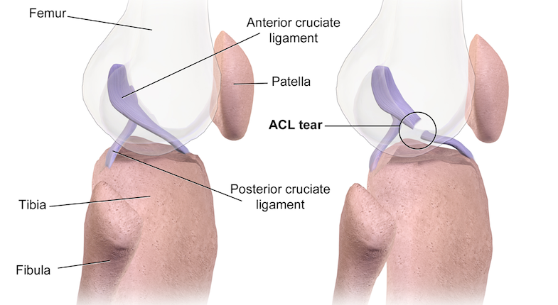 What Should I Know About ACL Surgery? | PainDoctor.com