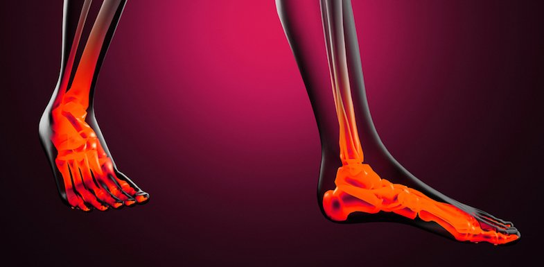 What Is Foot Pain? Common Causes And Treatments That Work | PainDoctor.com