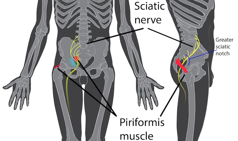 Piriformis Syndrome: Symptoms, Causes, & Treatments | PainDoctor.com