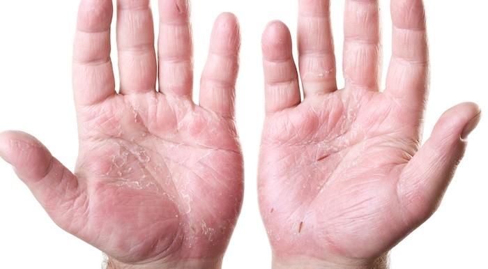 11 Early Psoriatic Arthritis Symptoms You Should Know | PainDoctor.com