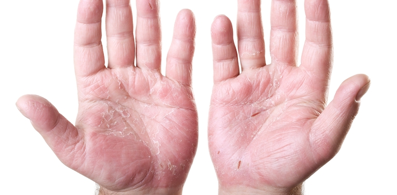 11 Early Psoriatic Arthritis Symptoms You Should Know