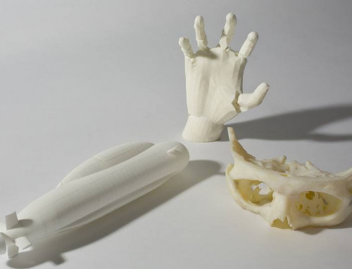 3D Printers Transform Healthcare, Creating Model Organs And Implantable Body Parts