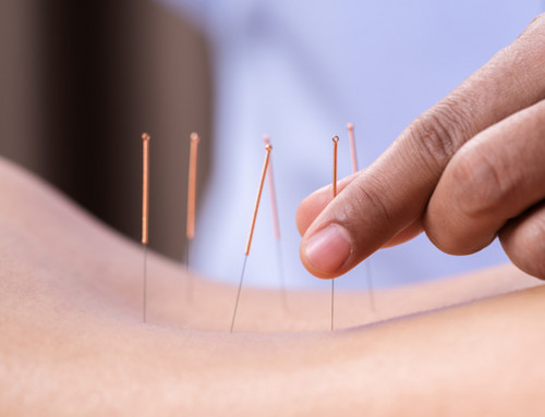 How Acupuncture For Sciatica Works To Relieve Pain