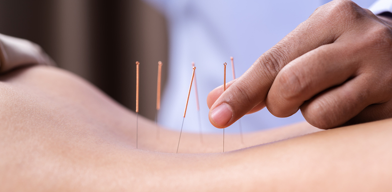 How Acupuncture For Sciatica Works To Relieve Pain | PainDoctor.com